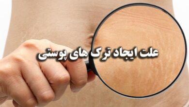 علت ایجاد ترک های پوستی همراه روش های پیشگیری و درمان ترک های پوستی
